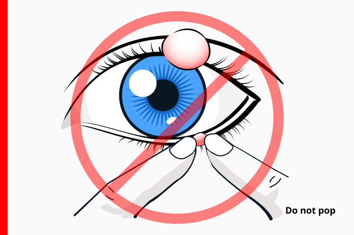 Do Not Pop An Eye Stye