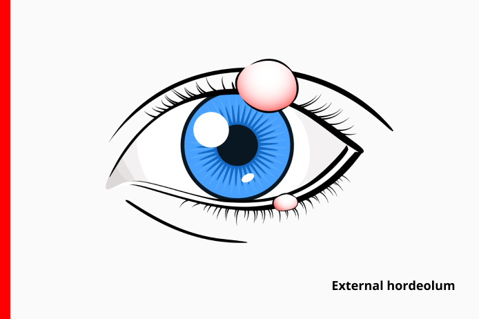 external eye stye also known as external hordeolum