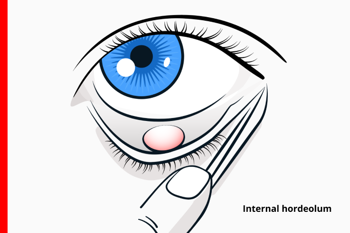 internal stye also known as an internal hordeolum