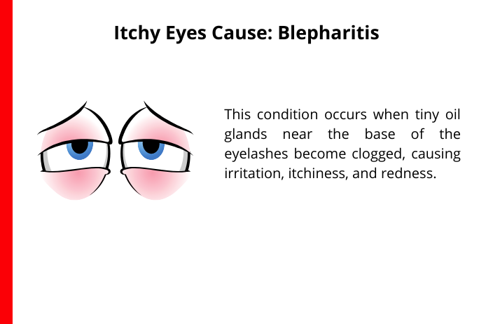 blepharatis as a common cause for itchy eyes