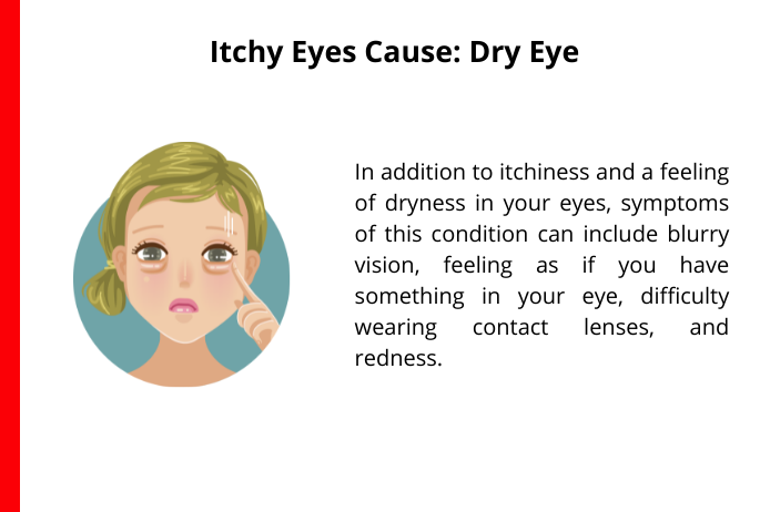 dry eye as a common cause for itchy eyes